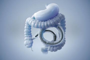 パワースパイラル小腸内視鏡