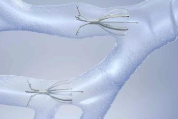 Endobronchial Valve Treatment