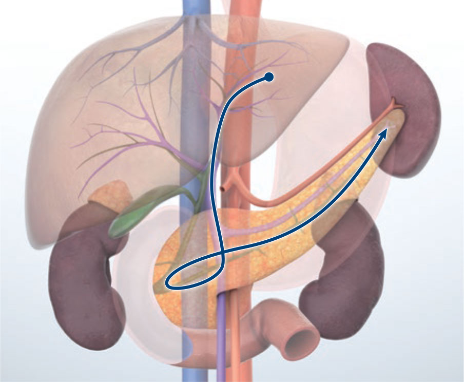Transgastric approach (portal vein route)
