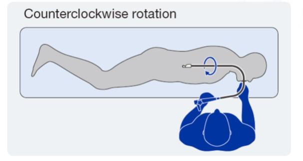 Counterclockwise rotation