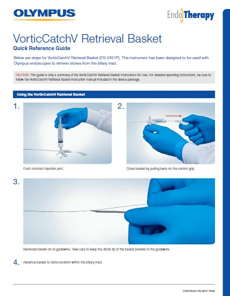 VorticCatchV Retrieval Basket